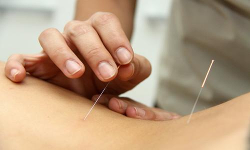 Características de la acupuntura