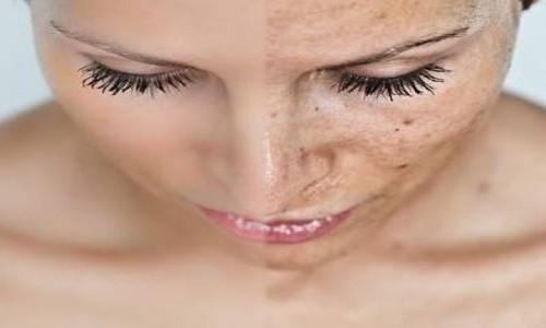 Láser contra las manchas de la piel