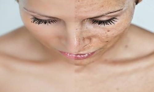 Peeling: todo lo que debería saber
